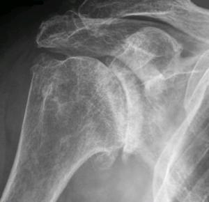 ShoulderOsteoarthritis